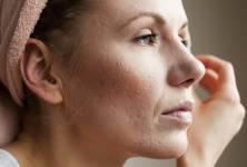 Jizvičky po akné: Existuje způsob, jak se jich zbavit?